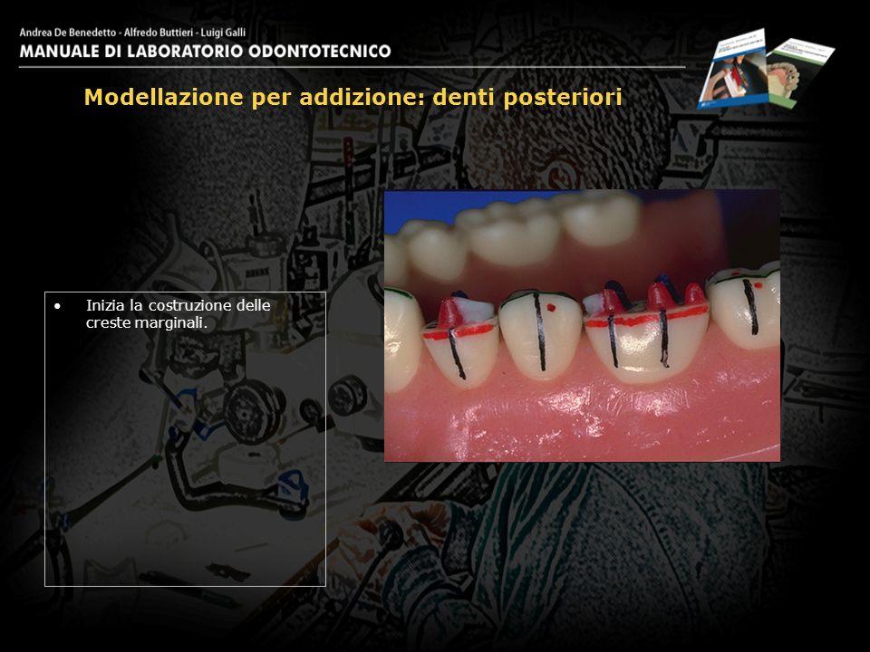 Inizia la costruzione delle creste marginali. Modellazione per addizione: denti posteriori 15