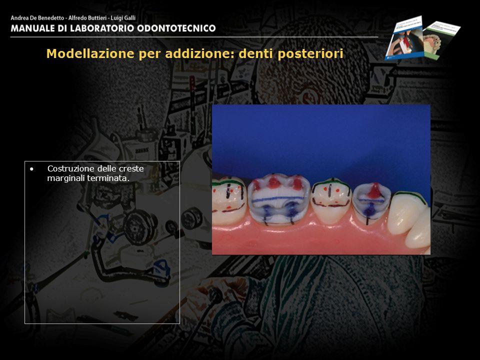 Costruzione delle creste marginali terminata. Modellazione per addizione: denti posteriori 16