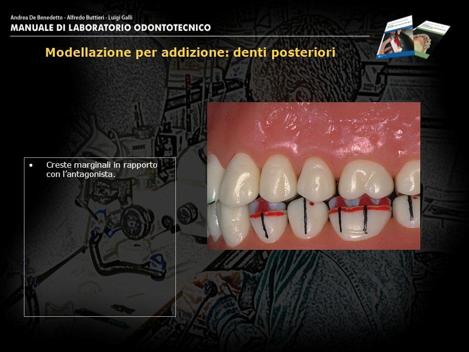 Creste marginali in rapporto con lantagonista. Modellazione per addizione: denti posteriori 17