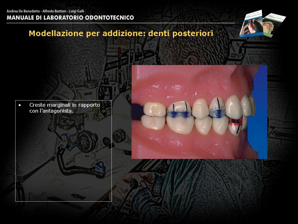 Creste marginali in rapporto con lantagonista. Modellazione per addizione: denti posteriori 18