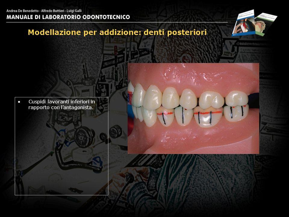 Cuspidi lavoranti inferiori in rapporto con lantagonista. Modellazione per addizione: denti posteriori 23