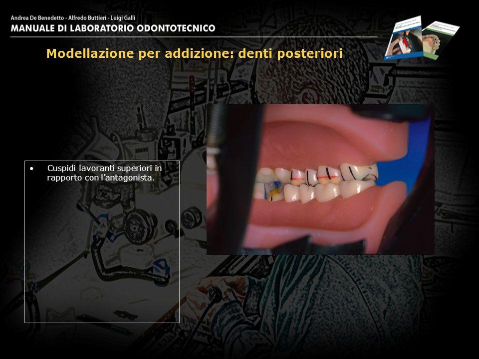 Cuspidi lavoranti superiori in rapporto con lantagonista. Modellazione per addizione: denti posteriori 24