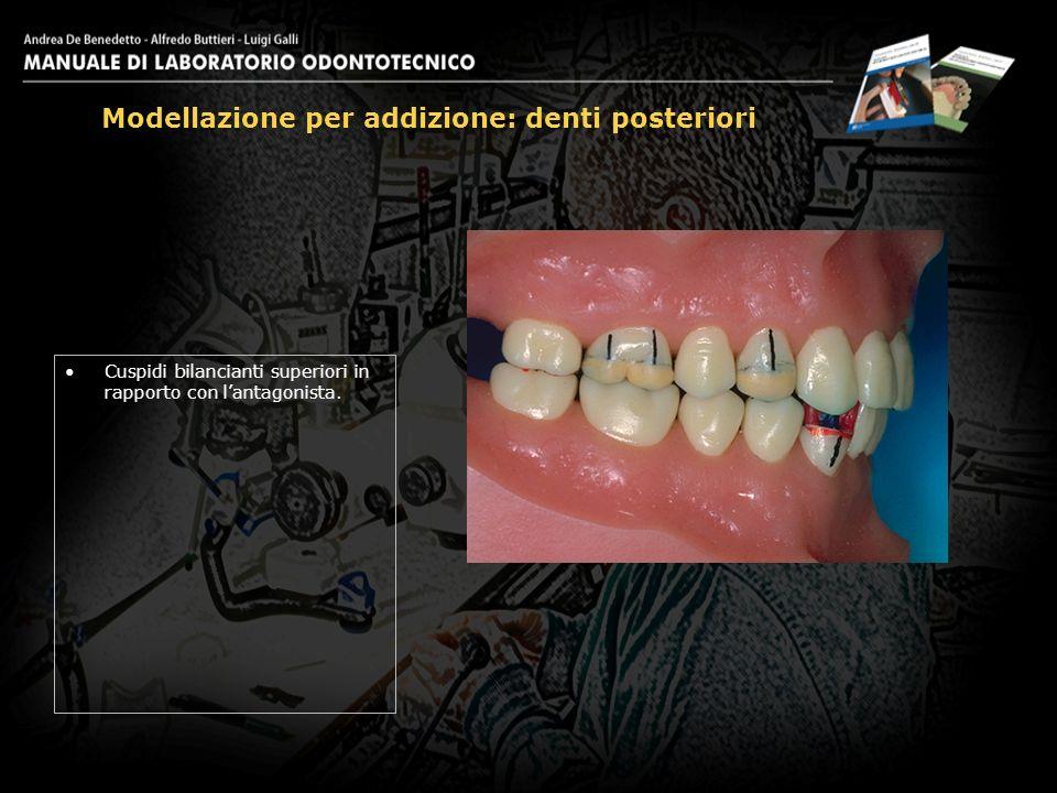 Cuspidi bilancianti superiori in rapporto con lantagonista. Modellazione per addizione: denti posteriori 25
