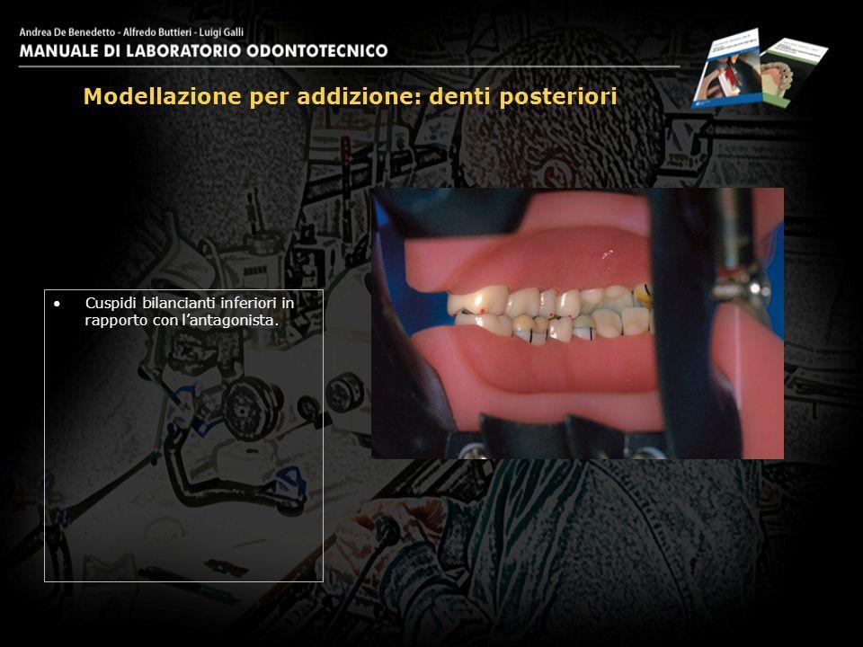 Cuspidi bilancianti inferiori in rapporto con lantagonista. Modellazione per addizione: denti posteriori 26