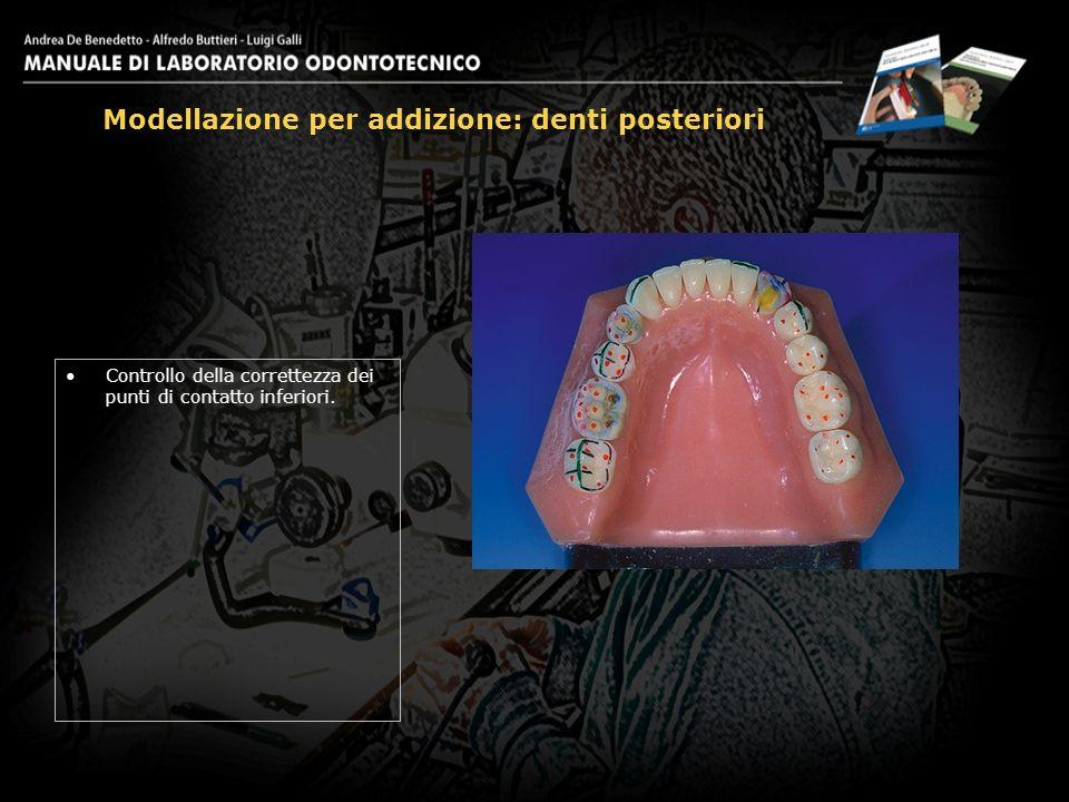 Controllo della correttezza dei punti di contatto inferiori. Modellazione per addizione: denti posteriori 27