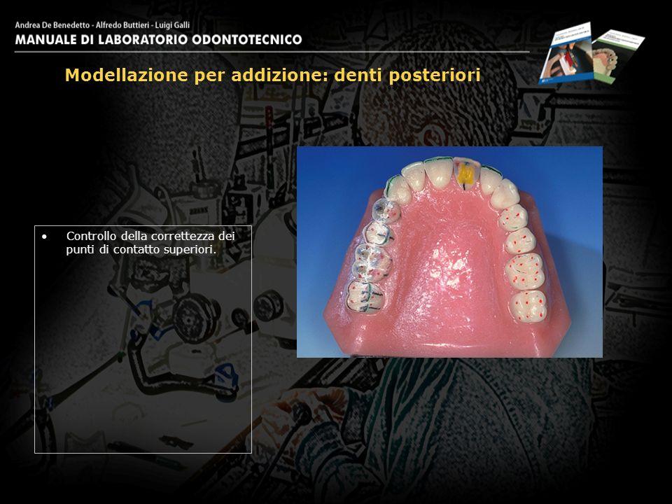 Controllo della correttezza dei punti di contatto superiori. Modellazione per addizione: denti posteriori 28