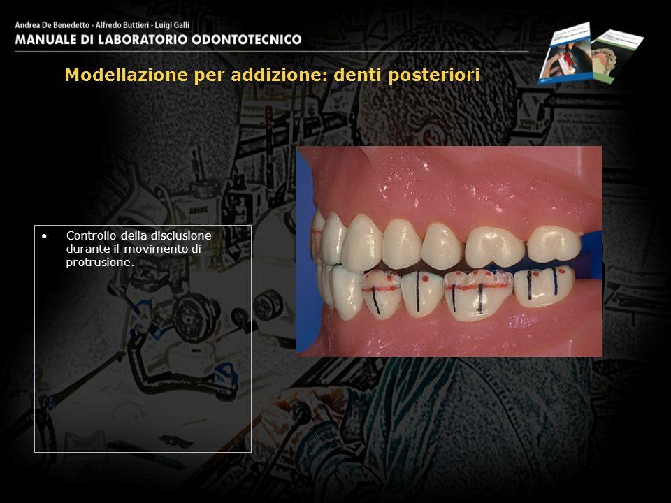 Controllo della disclusione durante il movimento di protrusione. Modellazione per addizione: denti posteriori 29