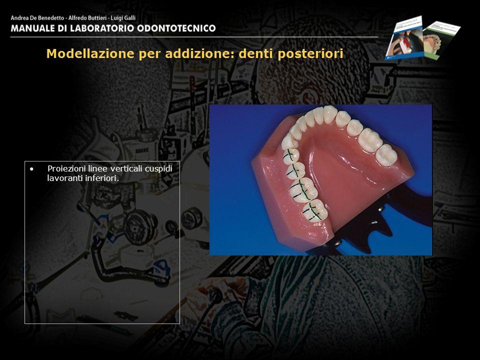 Proiezioni linee verticali cuspidi lavoranti inferiori. Modellazione per addizione: denti posteriori 3