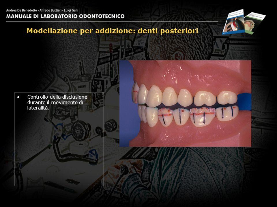 Controllo della disclusione durante il movimento di lateralità. Modellazione per addizione: denti posteriori 30