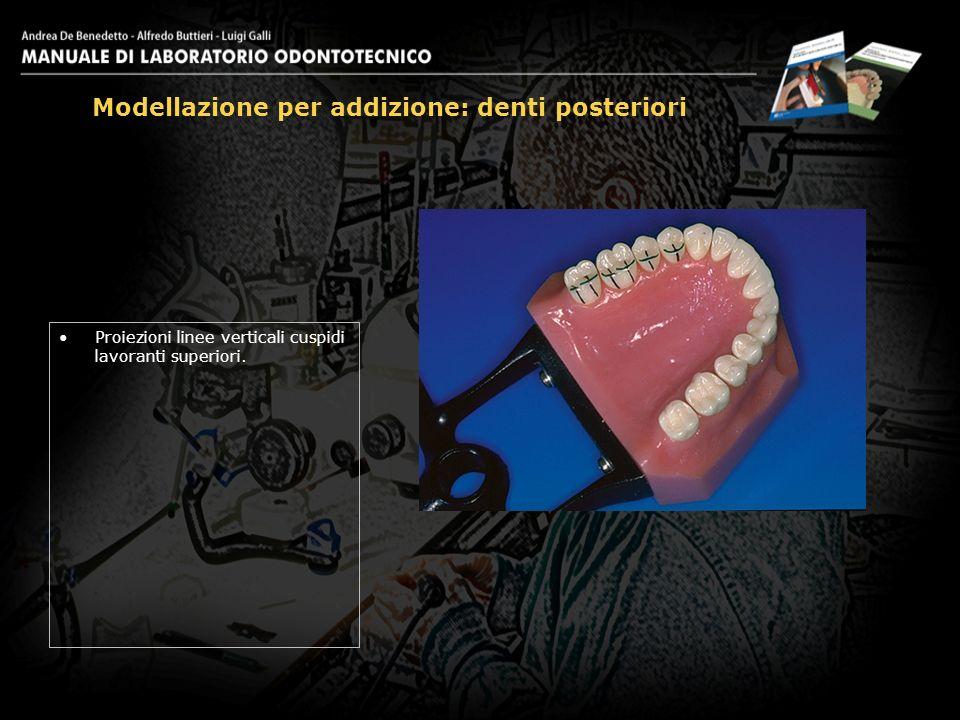 Proiezioni linee verticali cuspidi lavoranti superiori. Modellazione per addizione: denti posteriori 4