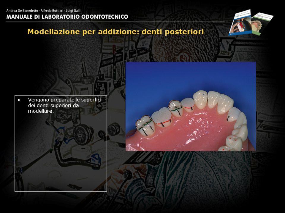Vengono preparate le superfici dei denti superiori da modellare.