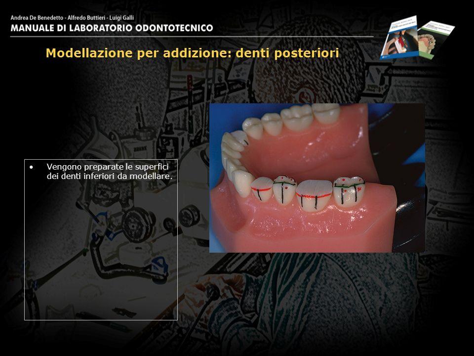 Vengono preparate le superfici dei denti inferiori da modellare.