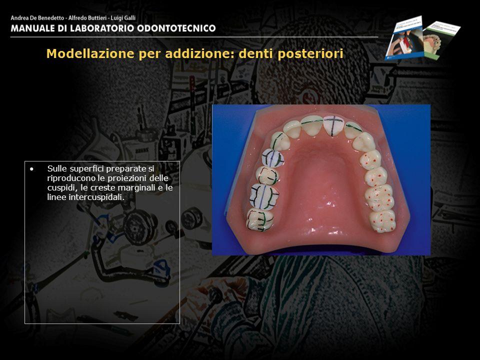 Sulle superfici preparate si riproducono le proiezioni delle cuspidi, le creste marginali e le linee intercuspidali. Modellazione per addizione: denti