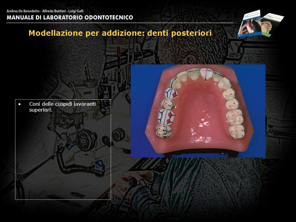 Coni delle cuspidi lavoranti superiori. Modellazione per addizione: denti posteriori 9