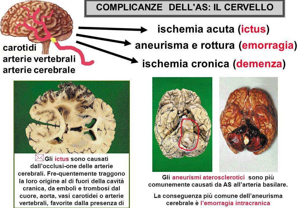 COMPLICANZE DELL'AS: IL CERVELLO ischemia acuta (ictus) carotidi arterie vertebrali arterie cerebrale ischemia cronica (demenza) aneurisma e rottura (