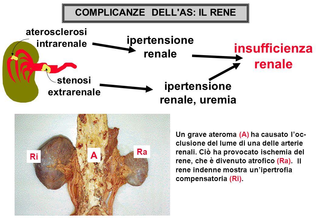 ha causato loc- clusione del lume di una delle arterie renali. Ciò ha provocato ischemia del rene, che è divenuto atrofico (Ra). aterosclerosi intrare