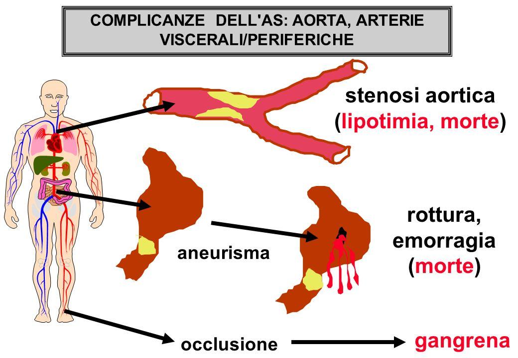 stenosi aortica (lipotimia, morte) aneurisma rottura, emorragia (morte) occlusione gangrena COMPLICANZE DELL'AS: AORTA, ARTERIE VISCERALI/PERIFERICHE