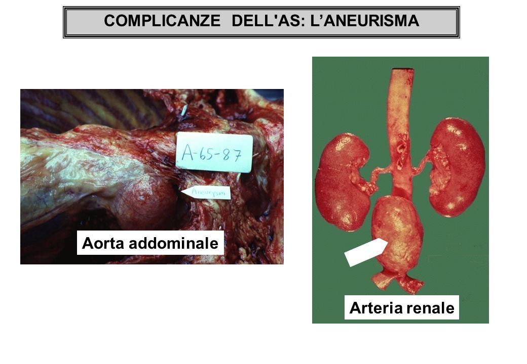 COMPLICANZE DELL'AS: LANEURISMA Arteria renale Aorta addominale