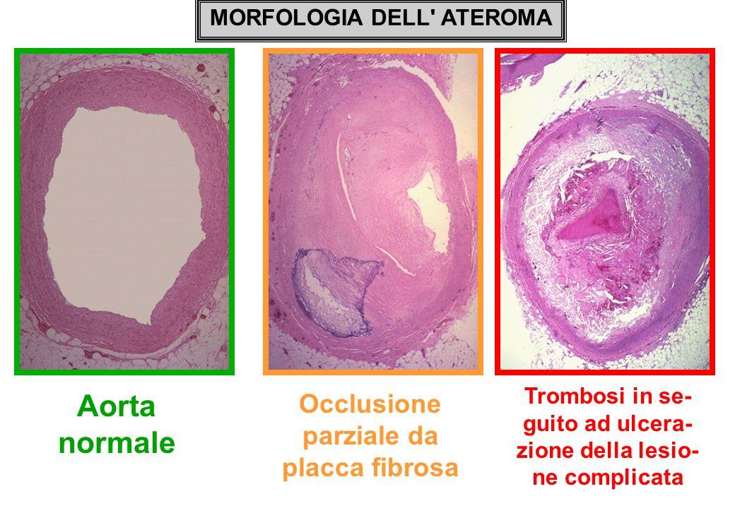 MORFOLOGIA DELL' ATEROMA Aorta normale Occlusione parziale da placca fibrosa Trombosi in se- guito ad ulcera- zione della lesio- ne complicata