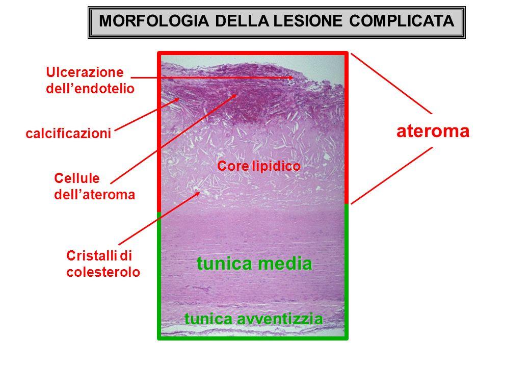 MORFOLOGIA DELLA LESIONE COMPLICATA tunica media ateroma Core lipidico Cristalli di colesterolo calcificazioni Cellule dellateroma Ulcerazione dellend