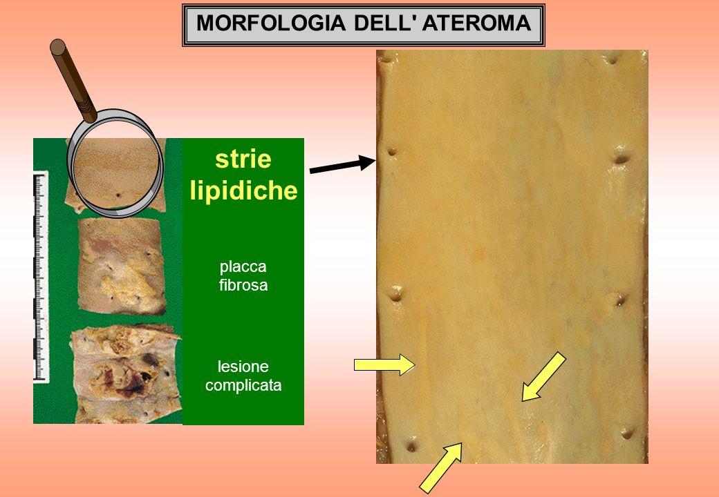 MORFOLOGIA DELL' ATEROMA strie lipidiche placca fibrosa lesione complicata