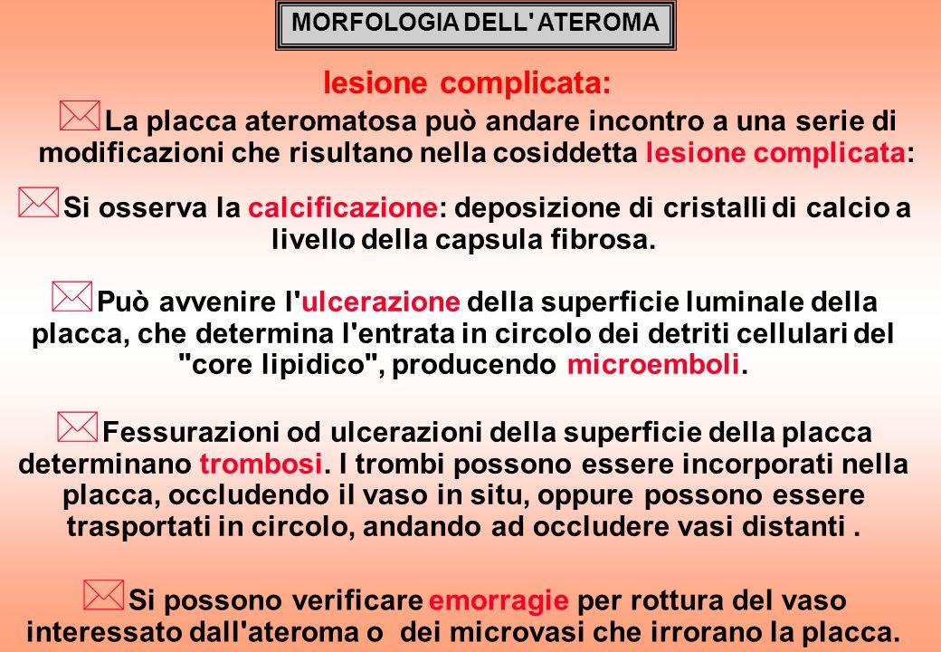 MORFOLOGIA DELL' ATEROMA * La placca ateromatosa può andare incontro a una serie di modificazioni che risultano nella cosiddetta lesione complicata: l