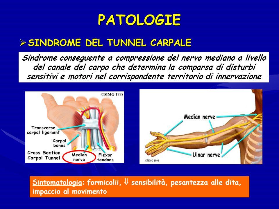 PATOLOGIE Sindrome conseguente a compressione del nervo mediano a livello del canale del carpo che determina la comparsa di disturbi sensitivi e motor