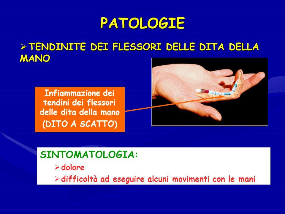 PATOLOGIE Infiammazione dei tendini dei flessori delle dita della mano (DITO A SCATTO) SINTOMATOLOGIA: dolore difficoltà ad eseguire alcuni movimenti