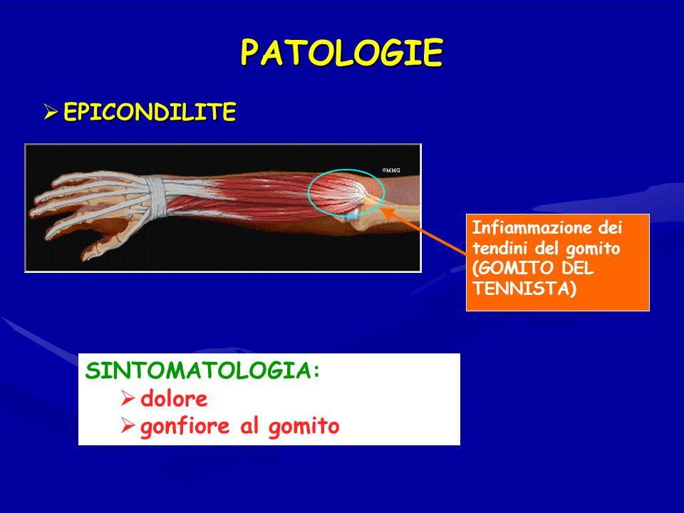 PATOLOGIE Infiammazione dei tendini del gomito (GOMITO DEL TENNISTA) SINTOMATOLOGIA: dolore gonfiore al gomito EPICONDILITE EPICONDILITE