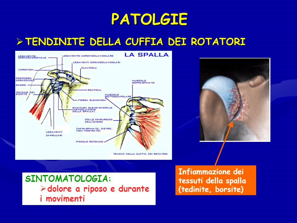 PATOLGIE Infiammazione dei tessuti della spalla (tedinite, borsite) SINTOMATOLOGIA: dolore a riposo e durante i movimenti TENDINITE DELLA CUFFIA DEI R