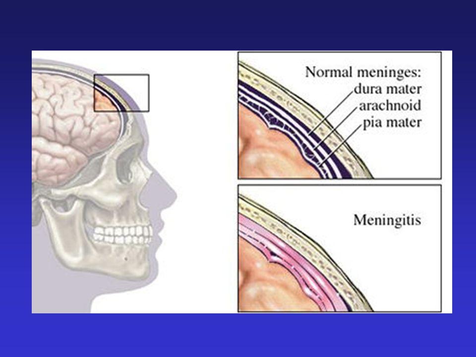 Letalità e sequele MENINGITE BATTERICA: letalità : 30% nel neonato 5-10% nelle età successive gravi sequele neurologiche: 25-30% dei casi Il meningococco causa gravi sepsi nel 10-20% dei casi.
