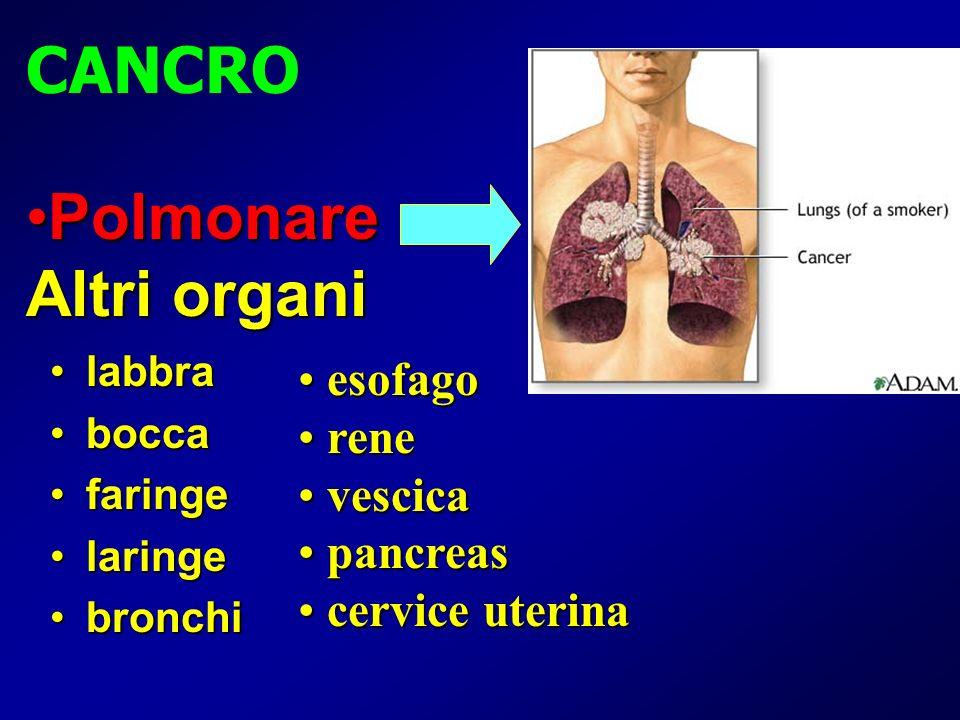 labbralabbra boccabocca faringefaringe laringelaringe bronchibronchi CANCRO esofago esofago rene rene vescica vescica pancreas pancreas cervice uterin
