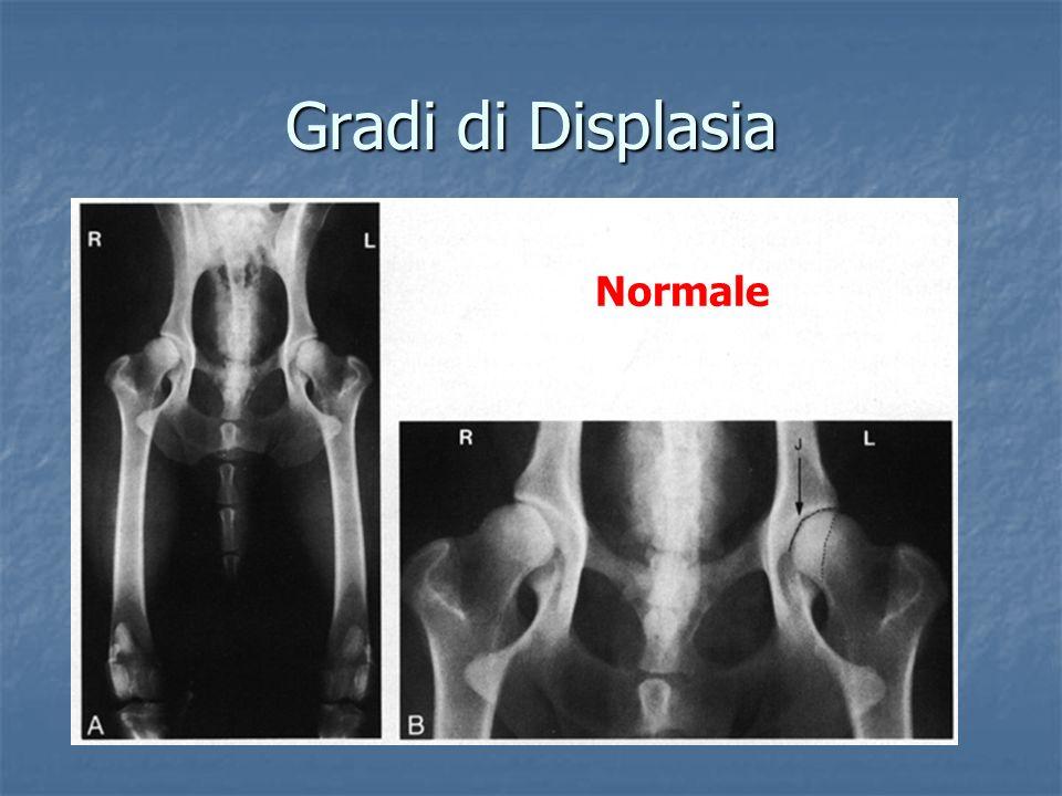 Gradi di Displasia Normale