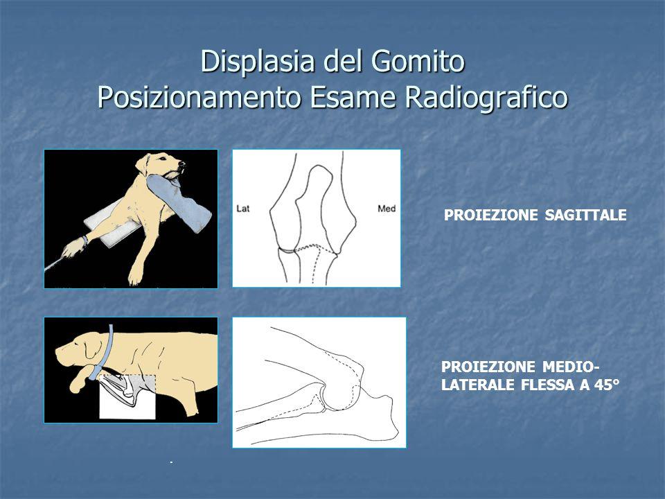 Displasia del Gomito Posizionamento Esame Radiografico. PROIEZIONE MEDIO- LATERALE FLESSA A 45° PROIEZIONE SAGITTALE