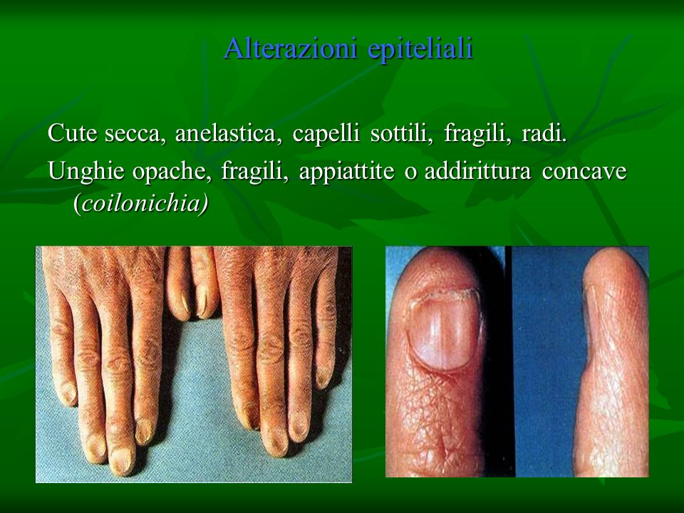 Alterazioni epiteliali Cute secca, anelastica, capelli sottili, fragili, radi. Unghie opache, fragili, appiattite o addirittura concave (coilonichia)