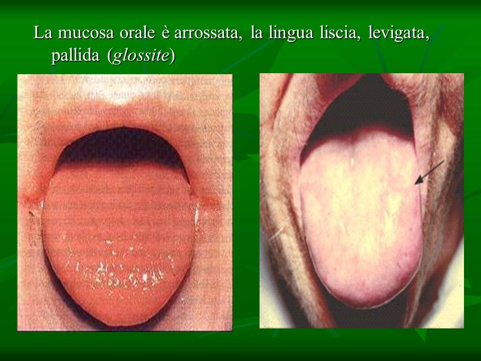 La mucosa orale è arrossata, la lingua liscia, levigata, pallida (glossite)