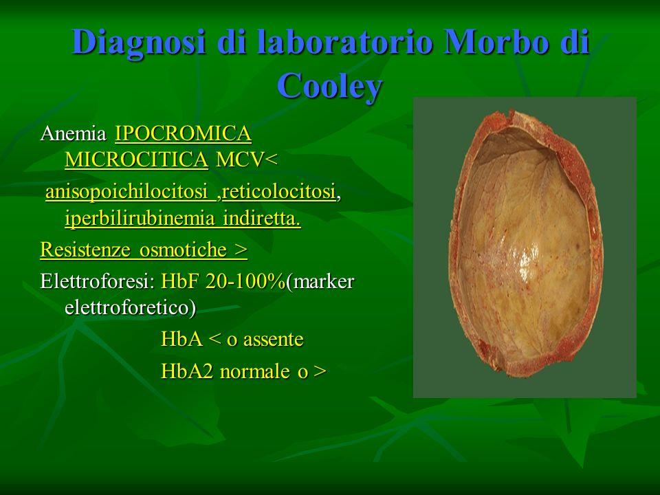 Diagnosi di laboratorio Morbo di Cooley Anemia IPOCROMICA MICROCITICA MCV< anisopoichilocitosi,reticolocitosi, iperbilirubinemia indiretta. anisopoich