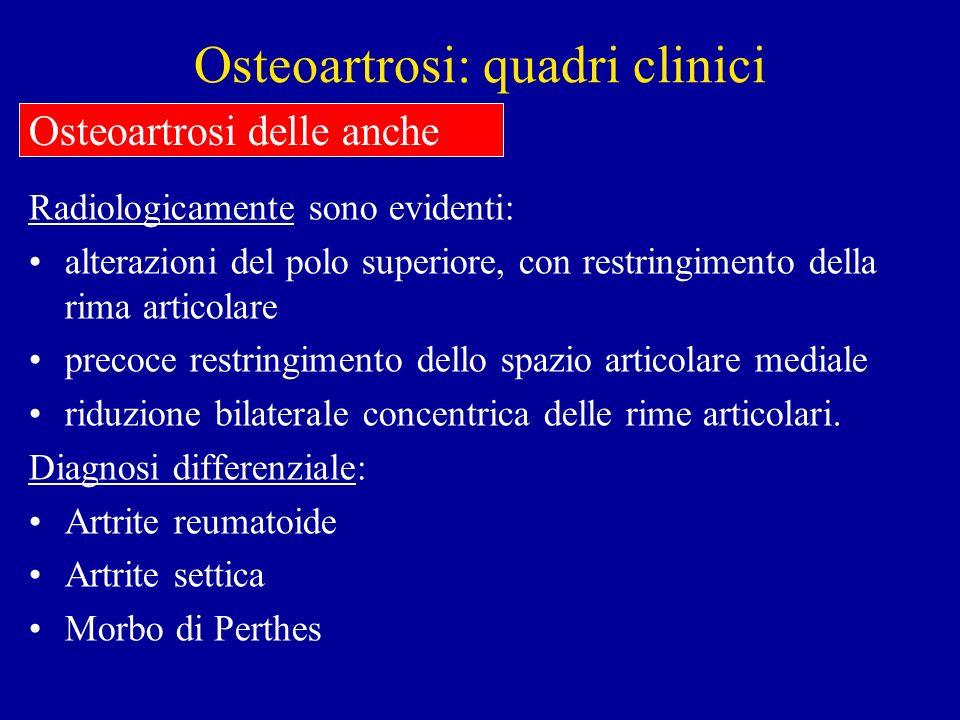 Osteoartrosi: quadri clinici Radiologicamente sono evidenti: alterazioni del polo superiore, con restringimento della rima articolare precoce restring