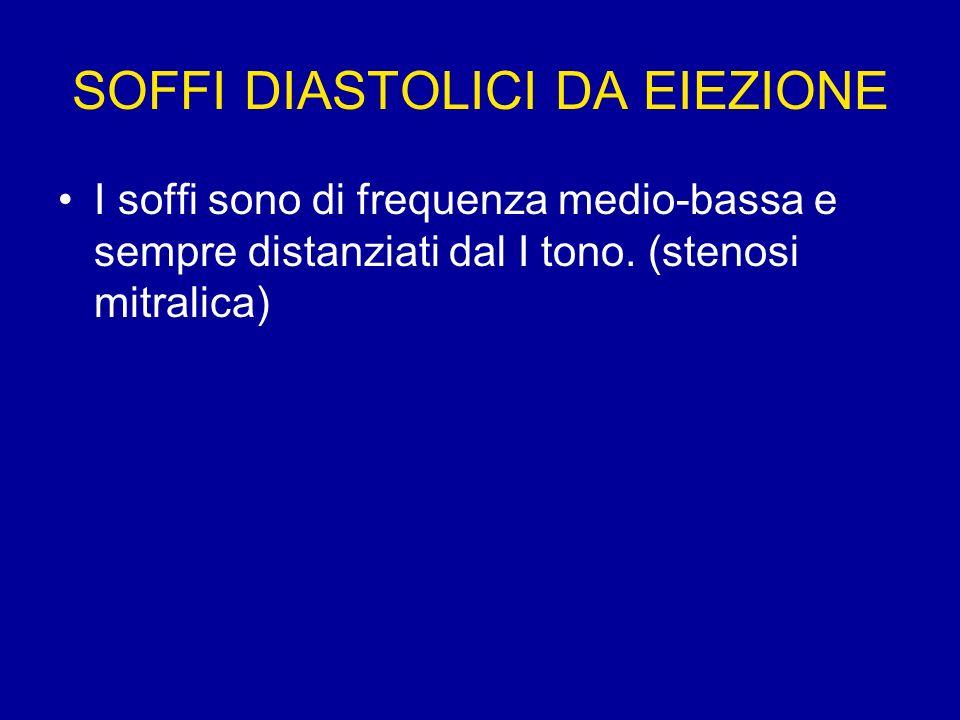 SOFFI DIASTOLICI DA EIEZIONE I soffi sono di frequenza medio-bassa e sempre distanziati dal I tono. (stenosi mitralica)
