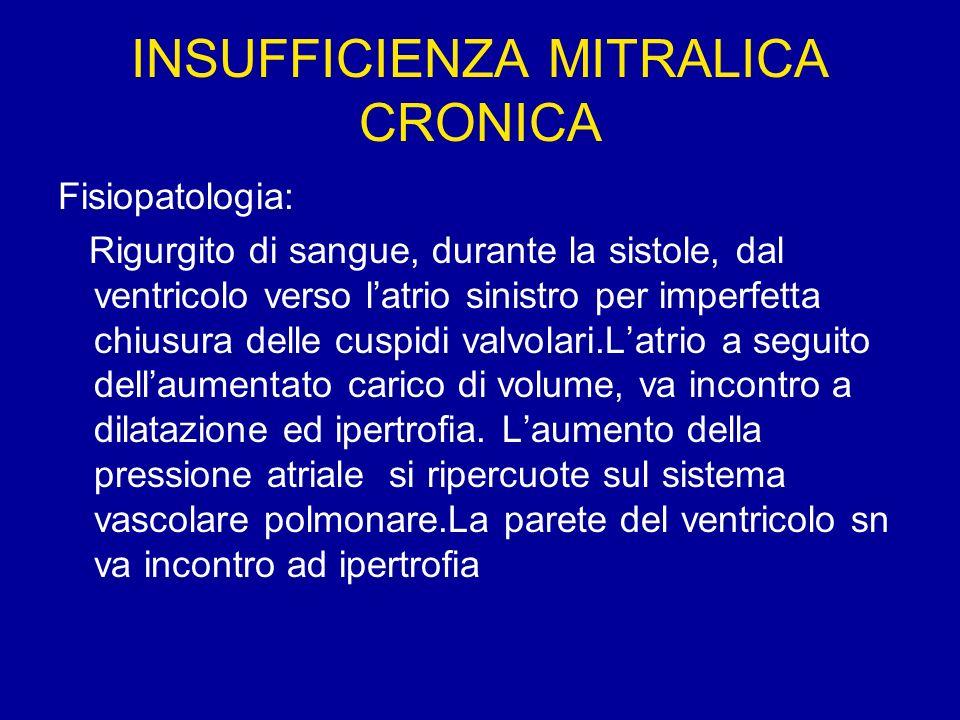 INSUFFICIENZA MITRALICA CRONICA Fisiopatologia: Rigurgito di sangue, durante la sistole, dal ventricolo verso latrio sinistro per imperfetta chiusura