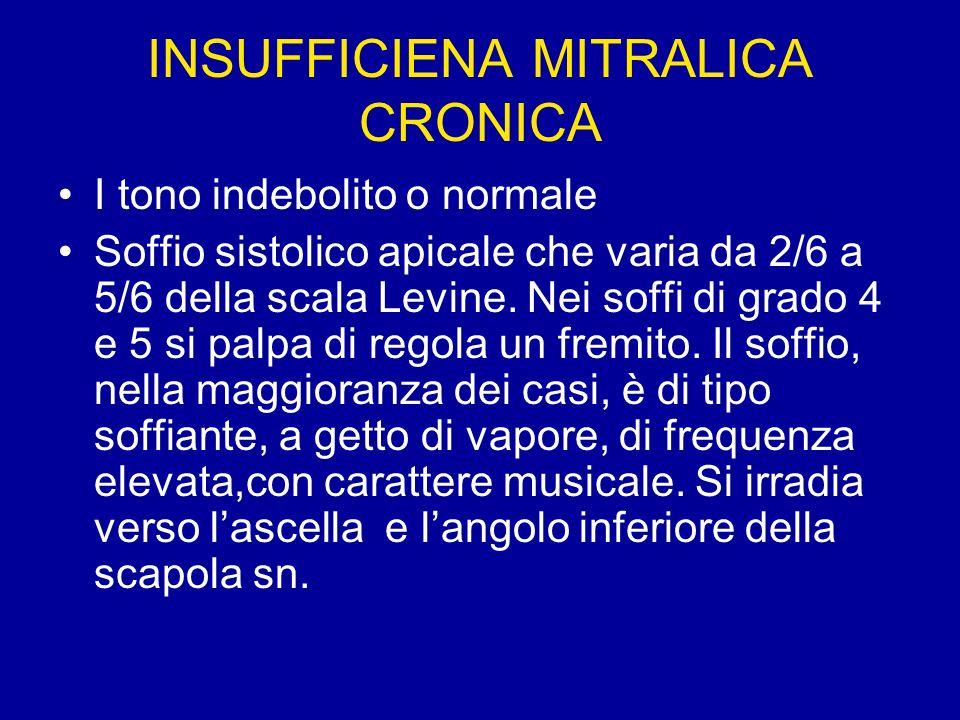 INSUFFICIENA MITRALICA CRONICA I tono indebolito o normale Soffio sistolico apicale che varia da 2/6 a 5/6 della scala Levine. Nei soffi di grado 4 e