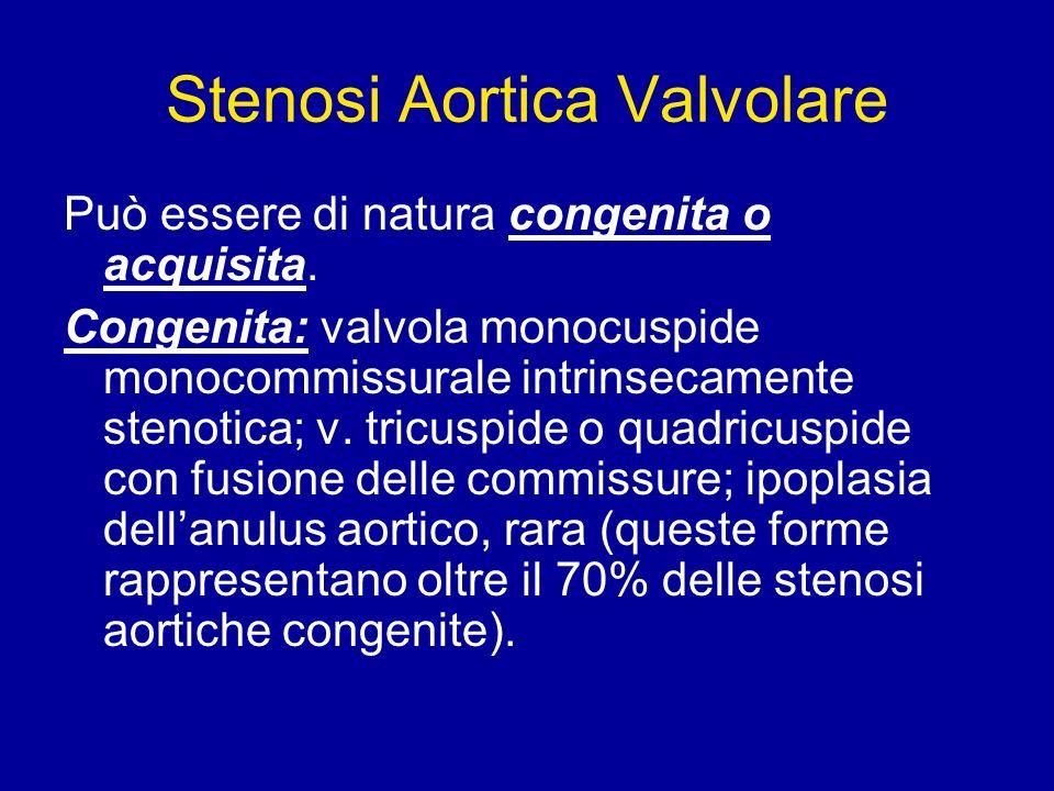 Stenosi Aortica Valvolare Può essere di natura congenita o acquisita. Congenita: valvola monocuspide monocommissurale intrinsecamente stenotica; v. tr