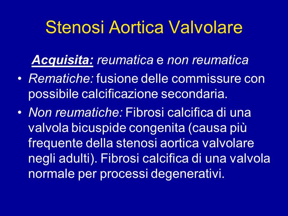 Stenosi Aortica Valvolare Acquisita: reumatica e non reumatica Rematiche: fusione delle commissure con possibile calcificazione secondaria. Non reumat