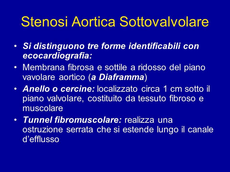 Stenosi Aortica Sottovalvolare Si distinguono tre forme identificabili con ecocardiografia: Membrana fibrosa e sottile a ridosso del piano vavolare ao