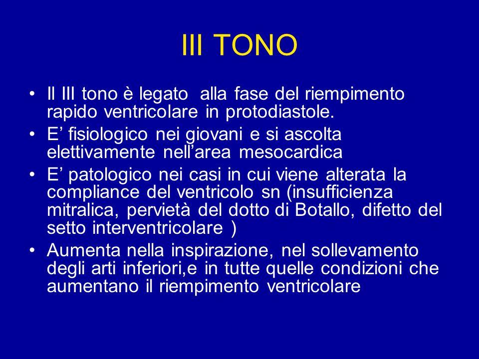 IV TONO Il IV tono è detto anche tono atriale,è generato dalla vibrazione delle pareti ventricolari distese dal sangue che fluisce rapidamente in ventricolo per effetto della contrazione atriale.