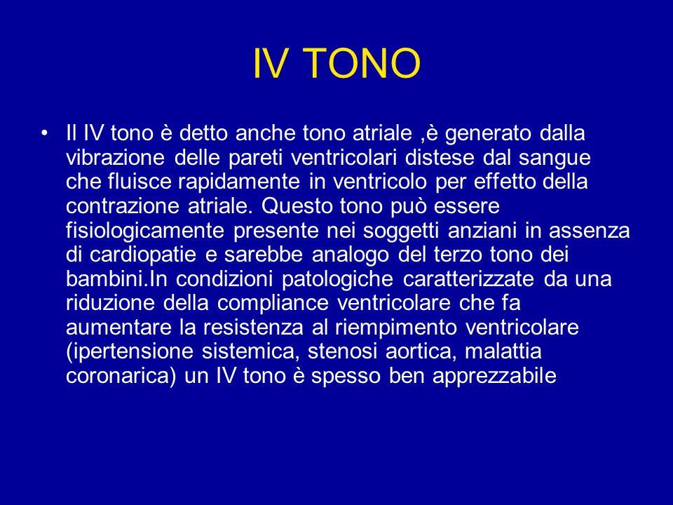 IV TONO Il IV tono è detto anche tono atriale,è generato dalla vibrazione delle pareti ventricolari distese dal sangue che fluisce rapidamente in vent