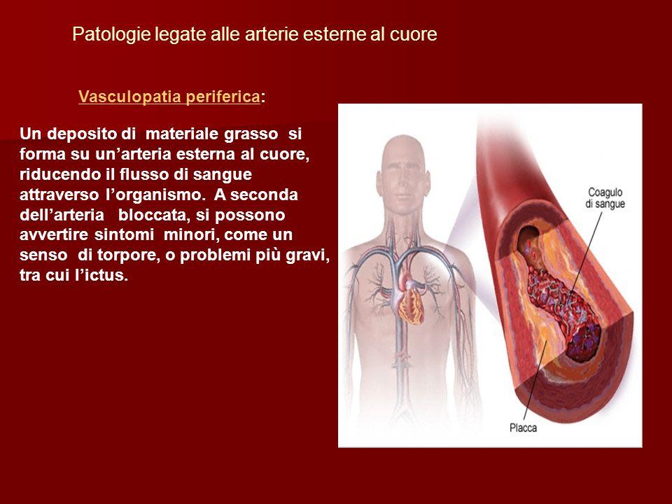 Vasculopatia perifericaVasculopatia periferica: Patologie legate alle arterie esterne al cuore Un deposito di materiale grasso si forma su unarteria e