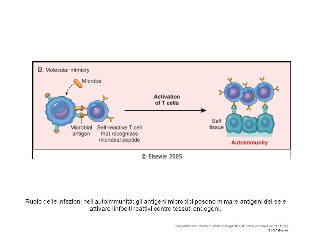 Ruolo delle infezioni nell'autoimmunità: gli antigeni microbici posono mimare antigeni del se e attivare linfociti reattivi contro tessuti endogeni. D