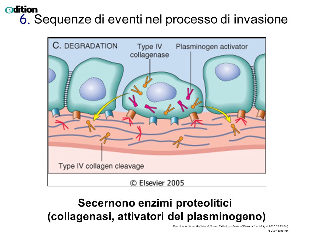 Downloaded from: Robbins & Cotran Pathologic Basis of Disease (on 16 April 2007 05:23 PM) © 2007 Elsevier Secernono enzimi proteolitici (collagenasi,