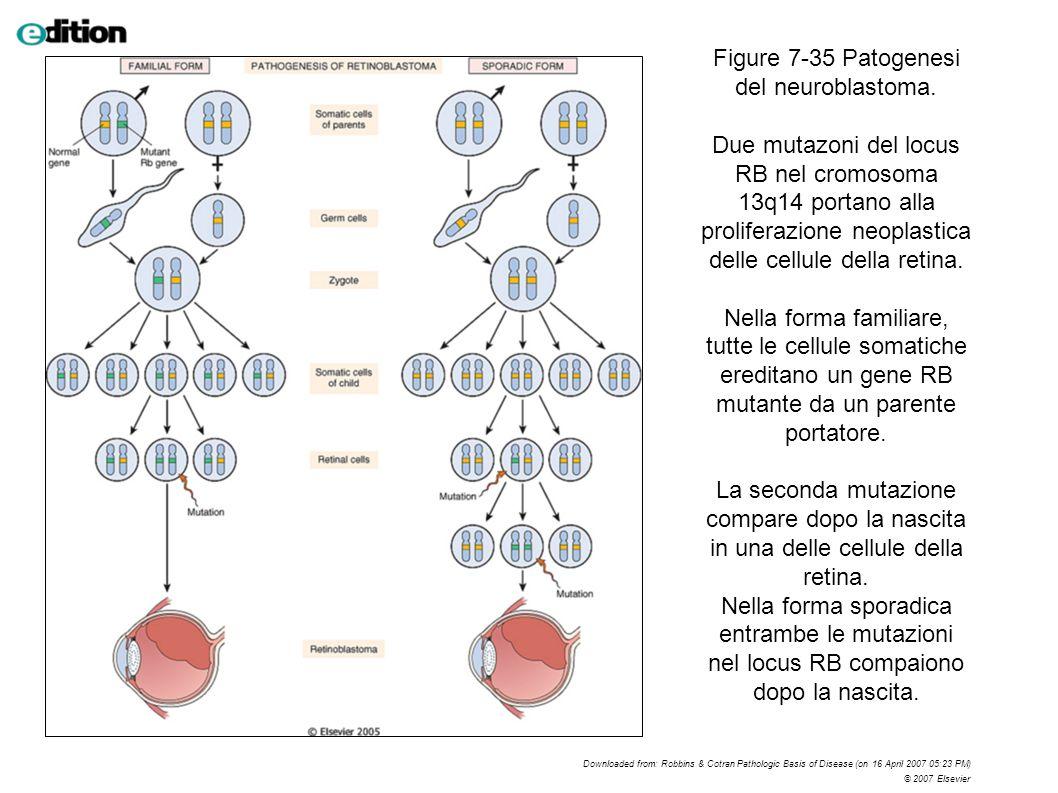 Figure 7-35 Patogenesi del neuroblastoma. Due mutazoni del locus RB nel cromosoma 13q14 portano alla proliferazione neoplastica delle cellule della re
